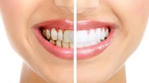 ترومای دندان