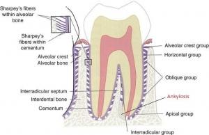 انکیلوز دندان