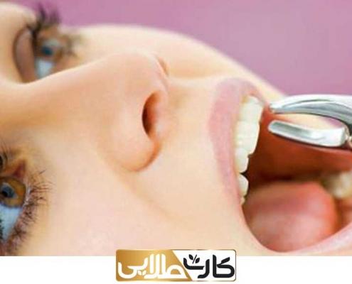 کات تخفیف دندان پزشکی