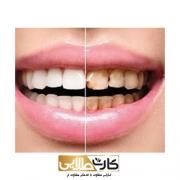 جرمگیری دندان