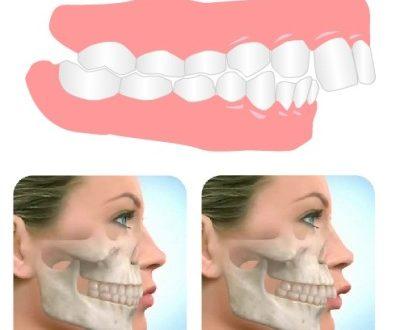 ناهنجاری فک و دندان