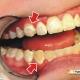 درمان-لکه-های-روی-دندان