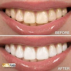 تعرفه دندانپزشکی