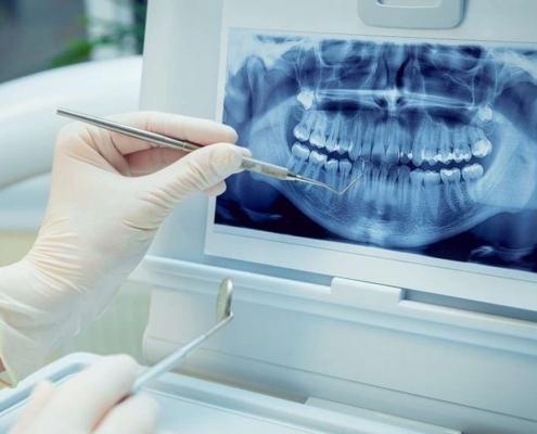 رادیوگرافی پری اپیکال یا تک دندان با بیمه کارت طلایی