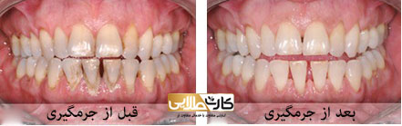 جرمگیری دندان, جرمگیری دندان چیست, هزینه جرمگیری دندان, فواید جرمگیری دندان