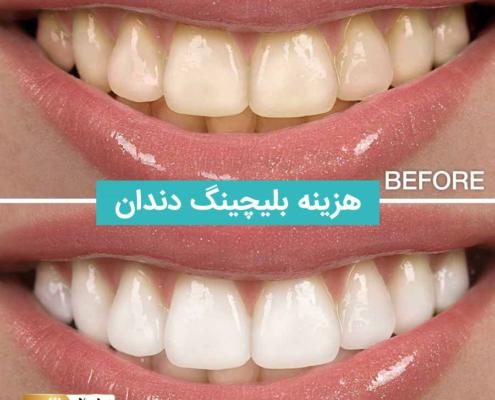 هزینه بلیچینگ دندان, بلیچینگ, قیمت بلیچینگ دندان