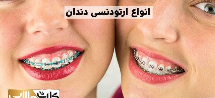 انواع ارتودنسی دندان, ارتودنسی دندان, هزینه ارتودنسی