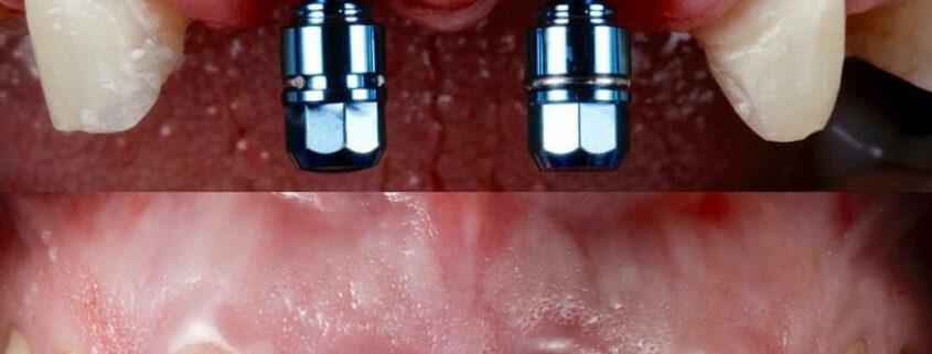 ایمپلنت دندان چیست, ایمپلنت دندان, هزینه ایمپلنت دندان