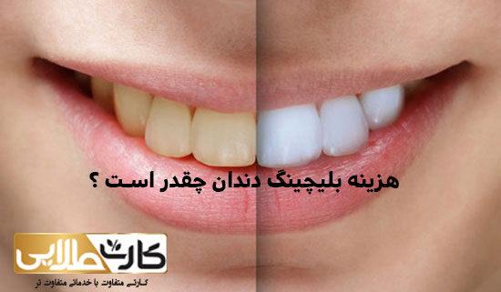 هزینه بلیچینگ دندان چقدر است ؟, هزینه بلیچینگ, هزینه بلیچینگ دندان, بیمه کارت طلایی