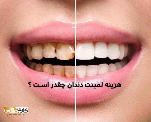 هزینه لمینت دندان چقدر است, هزینه لمینت دندان, لمینت دندان