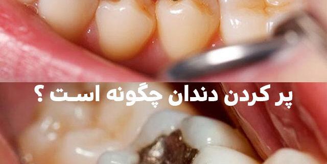 پر کردن دندان چگونه است, هزینه پر کردن دندان, پر کردن دندان