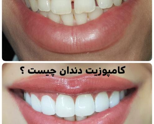 کامپوزیت دندان چیست, هزینه کامپوزیت دندان