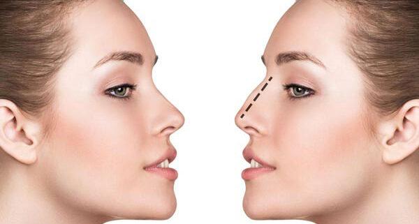 تخفیف جراحی بینی و عمل بینی, جراحی بینی, تخفیف عمل بینی