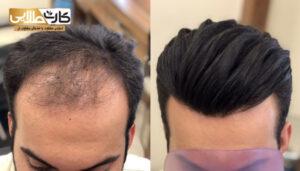 تخفیف کاشت مو, کاشت مو, هزینه کاشت مو