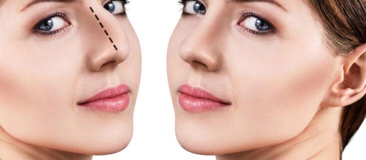 عوارض عمل بینی, هزینه عمل بینی, جراحی بینی