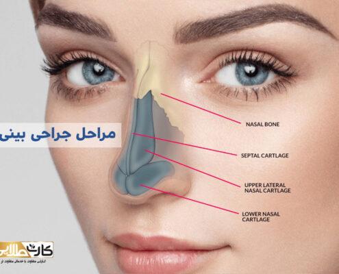 مراحل جراحی بینی, هزینه عمل بینی