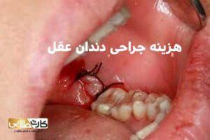 هزینه جراحی دندان عقل, جراحی دندان عقل