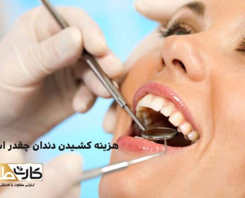 هزینه کشیدن دندان, کشیدن دندان, تخفیف کشیدن دندان