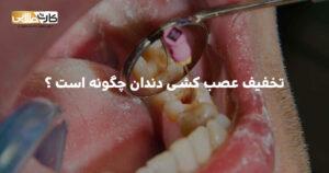 تخفیف عصب کشی دندان چگونه است