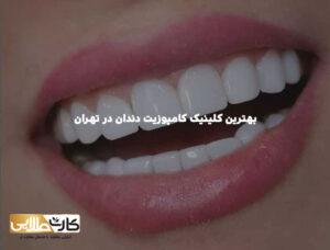 بهترین کلینیک کامپوزیت دندان در تهران