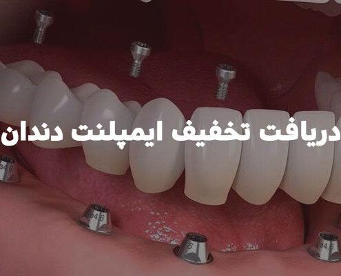 دریافت تخفیف ایمپلنت دندان